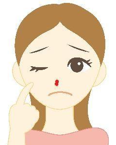 鼻に膿が詰まったニキビそれはめんちょうかも?<